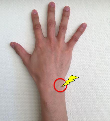 手首 痛い 🤝腕立て伏せ 手をつくと手首が痛いときの原因と筋膜調整の効果