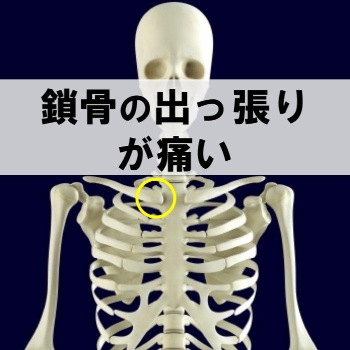 痛い 鎖骨 が の 下